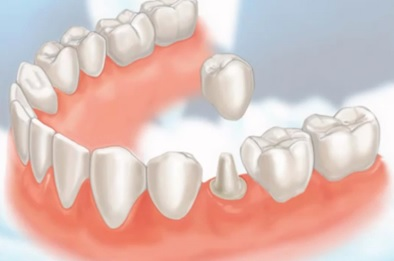 Here's a photo of what a tooth crown is.