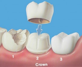 Here's a dental crown overview.