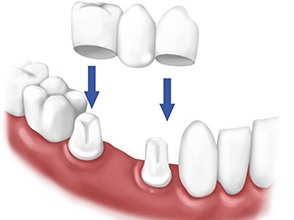 Here's an idea of what porcelain crown is.