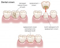 Here's a clear diagram of a dental crown.